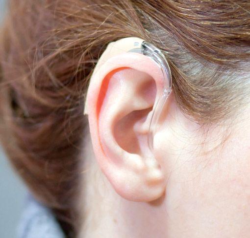 Kinder HdO Hörgerät