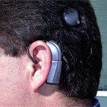 implantierte hörhilfe