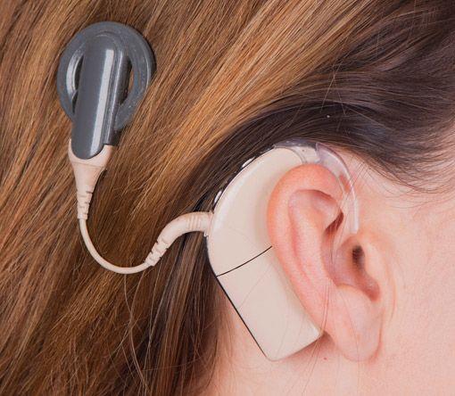 Cochlea Implantate
