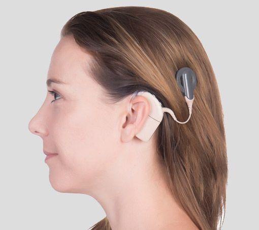 Cochlea Implantat Hörgerät