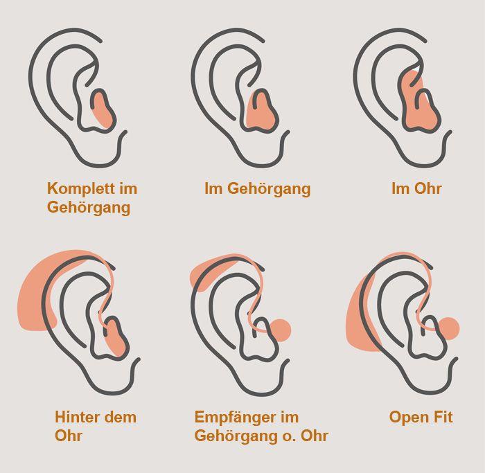 Hörgeräte Typen